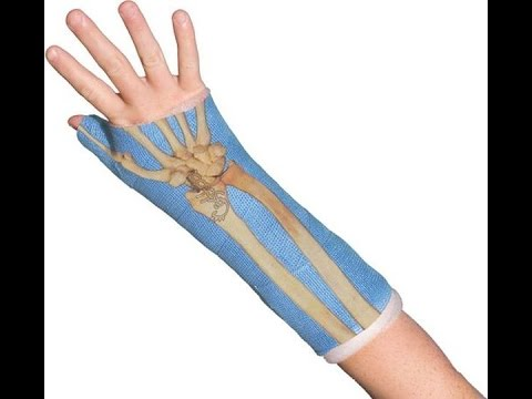 Top 24 stylish plaster that give almost want to get broken !! Plaster Fracture Bones, Arm, Foot ...
