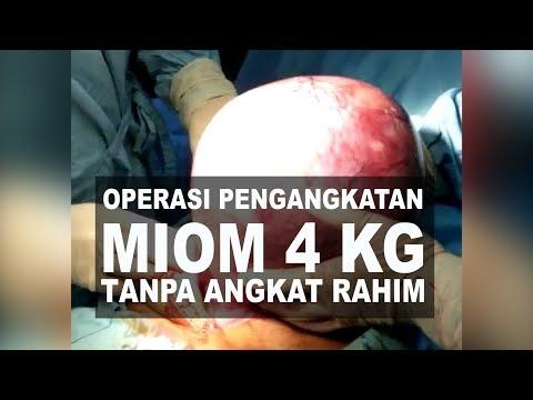 Operasi Pengangkatan Miom Tanpa Angkat Rahim Dr Boy Abidin Youtube