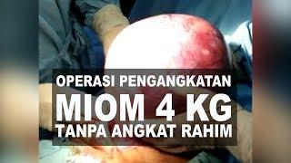 Mioma uteri submucosa.
