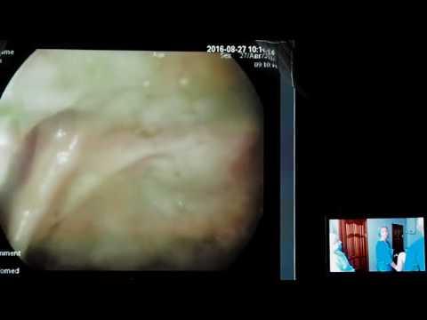 38 Live02 Полторыхина ЕА   Колоноскопия при НЯК  Подготовка Лавакол