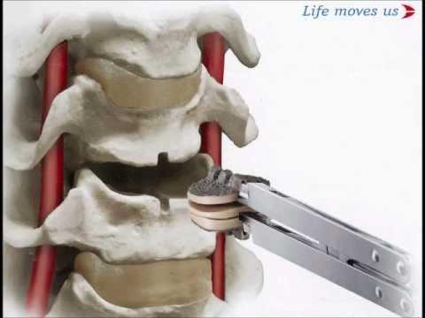 Secure-C Cervical artificial disc Replacement Hussien El ...