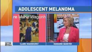 Former Baltimore news anchor Marianne Banister raises awareness for Adolescent Melanoma