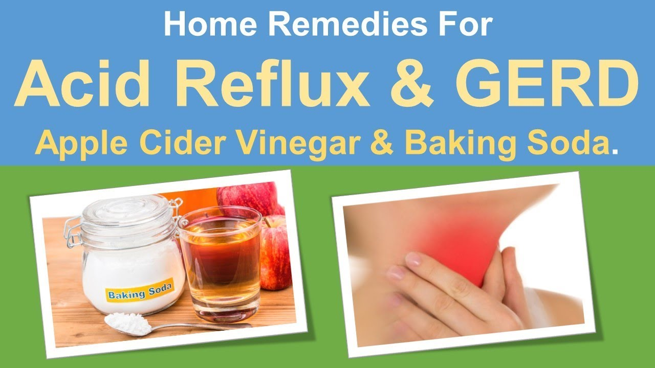 home remedies for acid reflux & gerd | apple cider vinegar. & baking