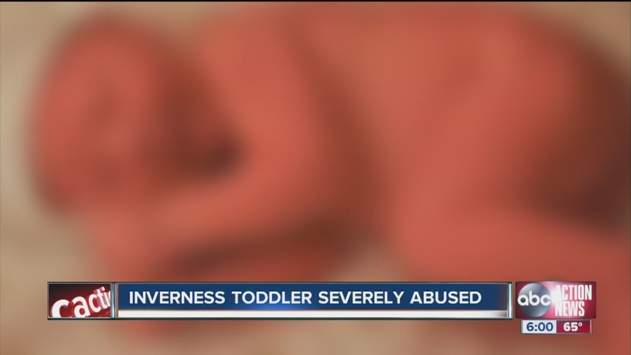 Citrus County toddler severely abused and neglected, mother arrested