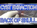 Cyst Extraction  - Back Of Skull