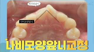 남자 V자(나비모양)로 회전된앞니 치아교정