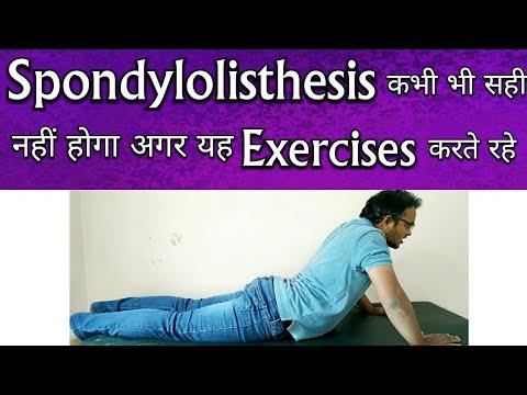 Spondylolisthesis Exercises – Exercises To AVOID For Spondylolisthesis TREATMENT
