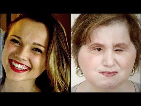 La historia detrs de la foto del trasplante de rostro de Katie ...