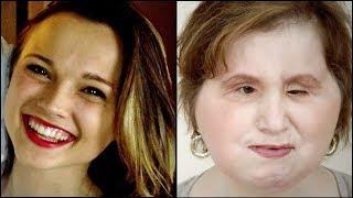 El increíble trasplante de cara a una adolescente que intentó suicidarse
