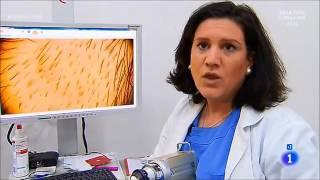 Caída del cabello: ¿cuándo acudir al dermatólogo?