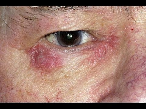 Dry patches of skin under eyes