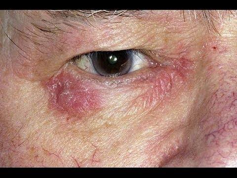 How To Treat Eczema Around The Eyes Eczema Around The