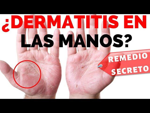 dermatitis en las manos imagenes