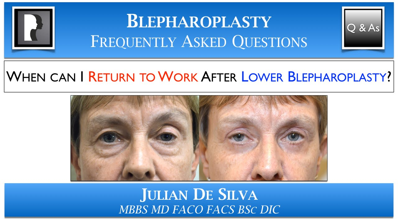 Lower Eye Lid Surgery in London | Plastic Surgery For The ...