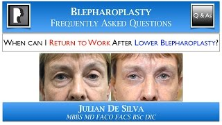 Lower Blepharoplasty Recovery: Returning to Work after Lower Eyelid Surgery