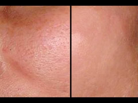 HOW TO: MAKE PORES DISAPPEAR IN SECONDS - GOOD FOR ACNE PRONE SKIN!