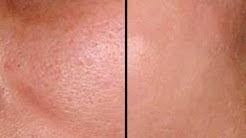 hqdefault - Shu Uemura Acne Prone Skin
