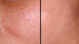 HOW TO MAKE PORES DISAPPEAR IN SECONDS GOOD FOR ACNE PRONE SKIN