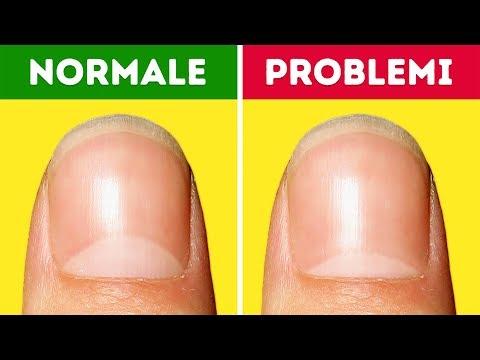 13 problemi di salute di cui le tue unghie ti avvisano