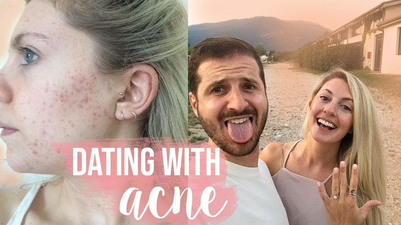 Secretul de a elimina adolescenta acnee pentru bine