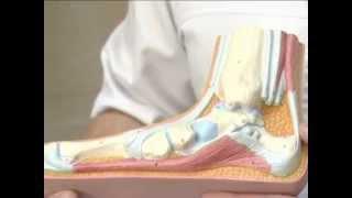 видео Косолапость (врожденная) у детей: причины и лечение