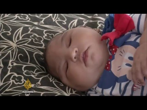 Zika virus linked to more neurological conditions