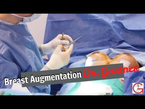 Breast Augmentation  Breast Implants  Boob Job  Before and After  Dr. Gartner