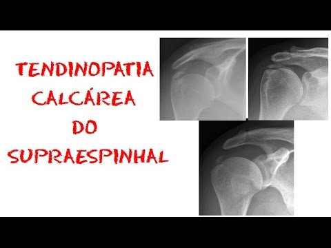 Tendinite do supraespinhoso do ombro sintomas e tratamento