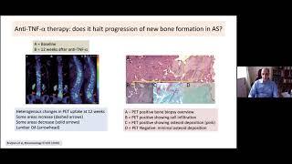Arvind Kaul    Ankylosing Spondylitis: Old Disease, New Mechanisms
