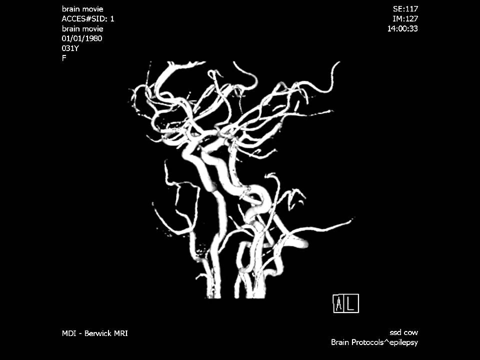 MDI Radiology - MRI Spine COW IAC movie - YouTube