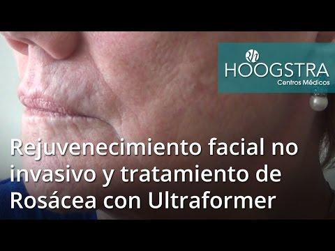 Rejuvenecimiento facial no invasivo y tratamiento de Rosácea con Ultraformer (17018)