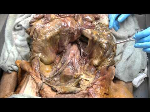 Summer 2013 Abdominal Vasculature