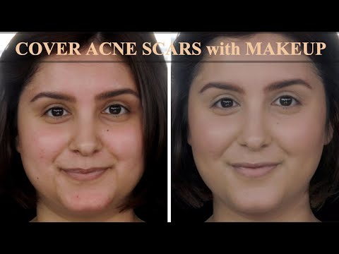 Cover ACNE Scars and Redness with Makeup   Tutorial to get Natural Look