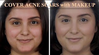 Cover ACNE Scars and Redness with Makeup | Tutorial to get Natural Look