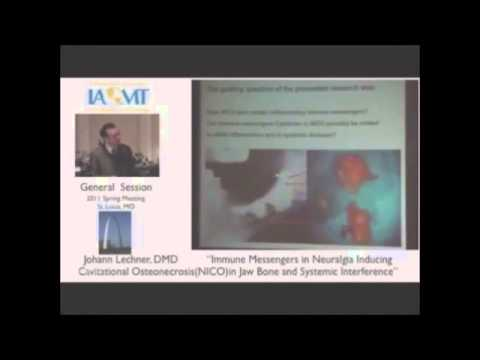 JAWBONE CAVITATION explained by IAOMT biological dentists