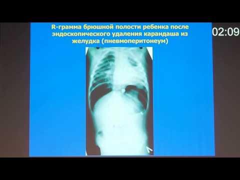Чем опасен пневмосклероз? -