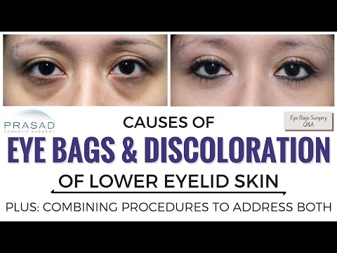 The Causes of Eye Bags and Discolored Lower Eyelid Skin, and Treating Both Separately
