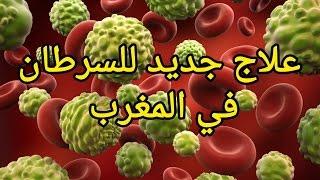 علاج جديد للسرطان في المغرب