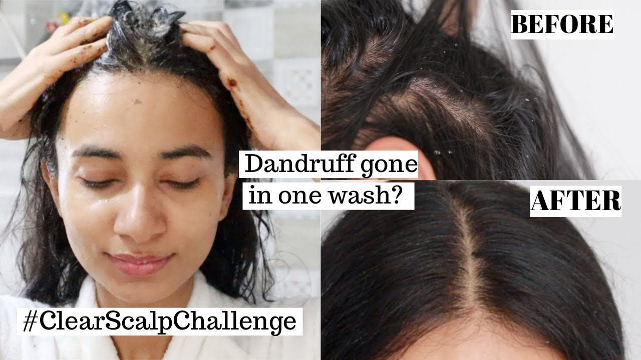 #ClearScalpChallenge to reduce dandruff in one use | Is it effective? 🤔
