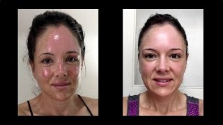 Facial Burn and Healing - Neryl Joyce