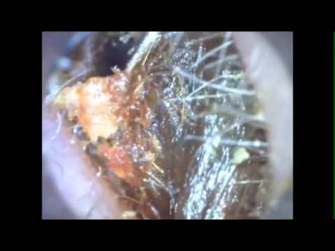 ear-wax-removal-unbelievable-what-comes-out,