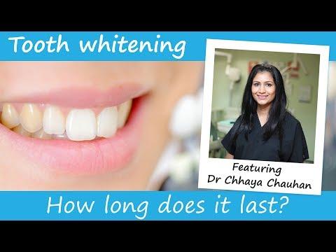 Professional Teeth Whitening Costs Advice Faq Electric Teeth