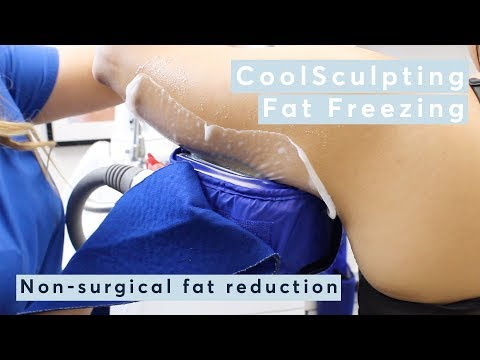 How Does CoolSculpting | Fat Freezing Work?
