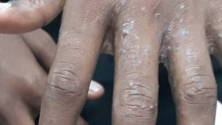 Scabies. The newer drug for scabies is Ivermectin, all other
