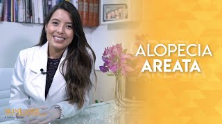 Alopécia Areata