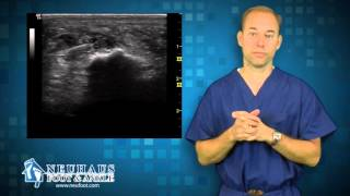 How Ultrasound is used to treat Plantar Fasciitis, Heel Pain