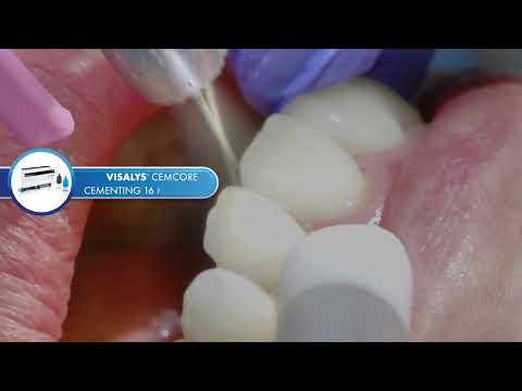 Visalys® CemCore Facings - Cosmetic and Functional Introduction (Teaser)