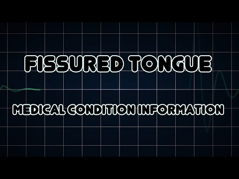 Fissured tongue (Medical Condition)