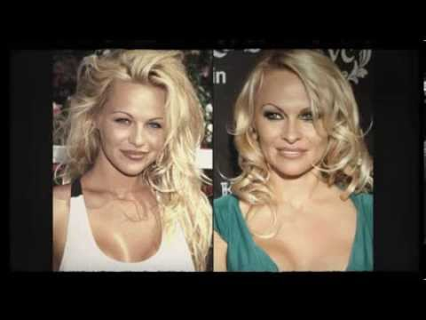 20 Worst Cases Of Celebrity Plastic Surgery Gone Wrong ... |Plastic Surgery Procedure Gone Wrong