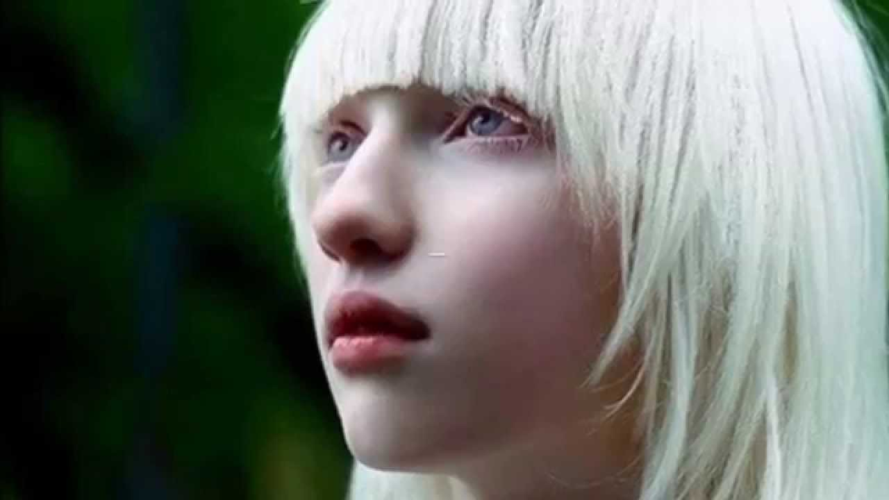 Most Beautiful People With Albinism YouTube